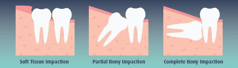 شکل- به ترتیب از سمت راست: نهفتگی کامل در استخوان، نیمه نهفتگی در استخوان، نهفتگی در بافت نرم.