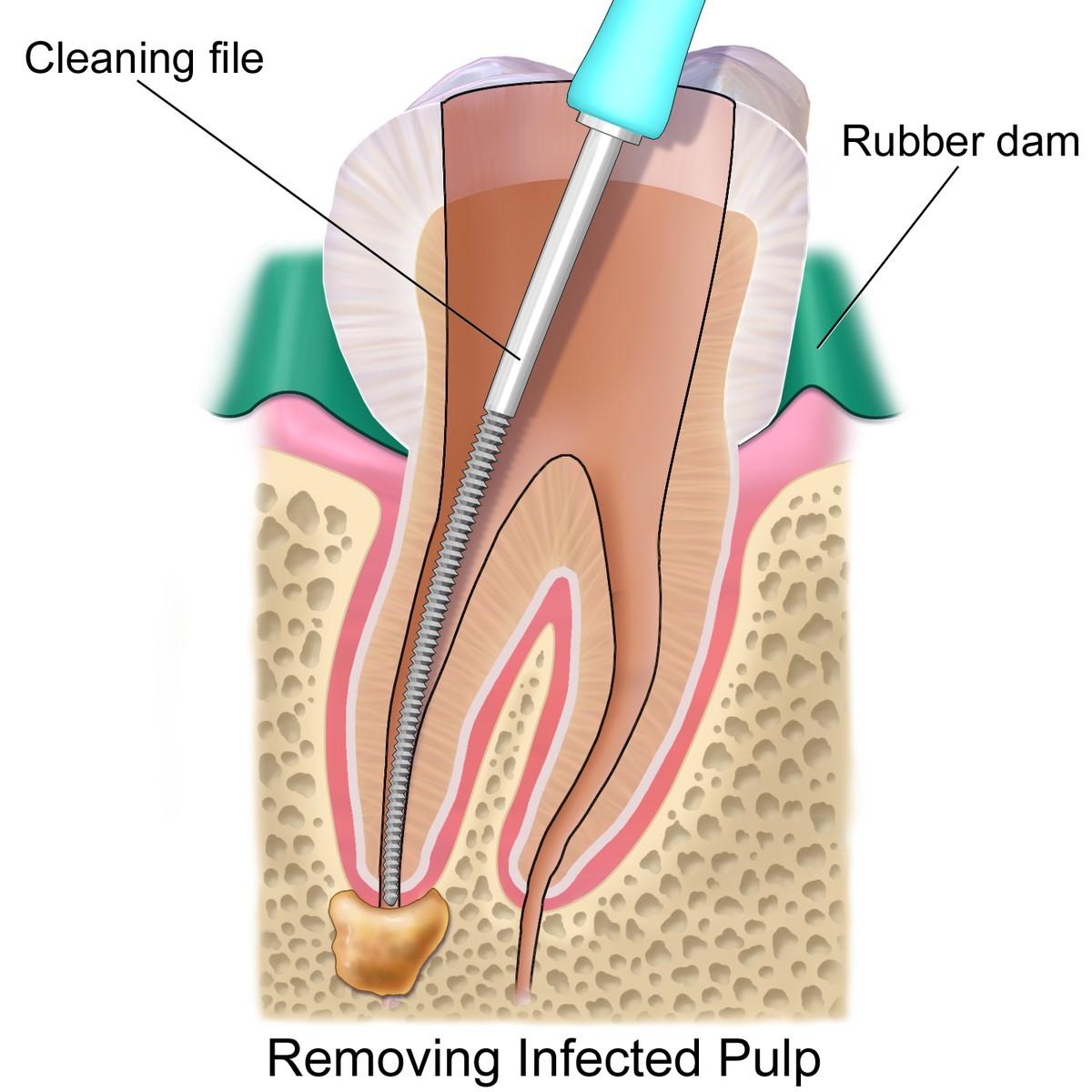 تفاوت درمان ریشه دندان در کودکان و بزرگسالان