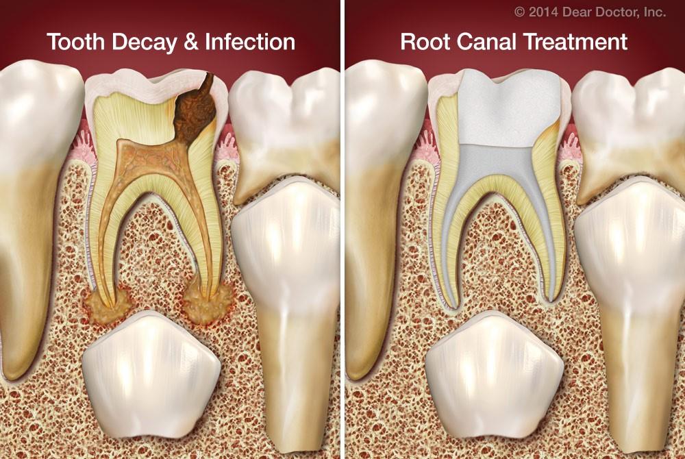 شکل – عصب کشی دندان شیری که در زیر آن دندان دائمی قرار دارد.