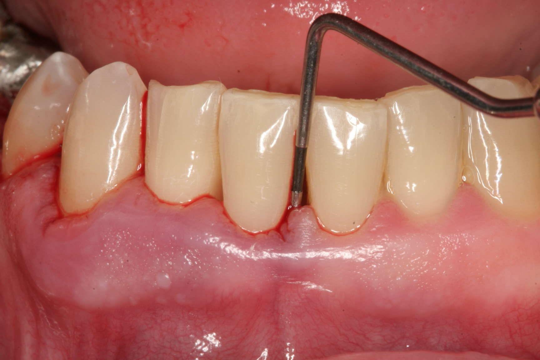 مشکلات رایج دندانپزشکی و راههای پیشگیری و درمان آنها