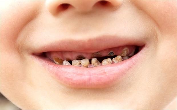 از دست رفتن زودهنگام دندان شیری کودکان