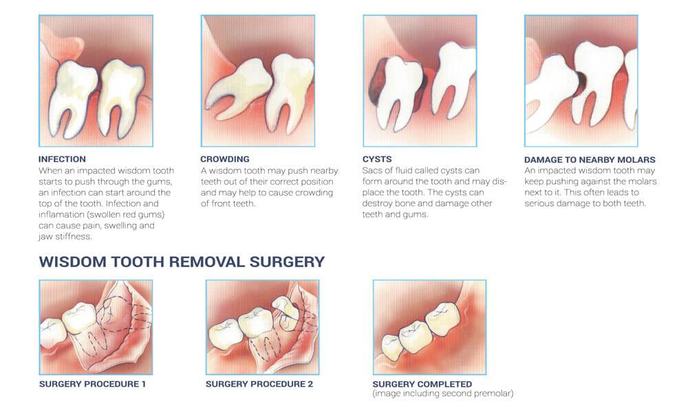مشکلات شایع در جراحی دندان عقل