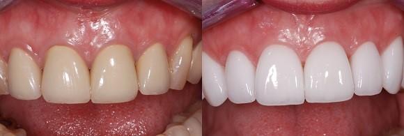 تغییر رنگ دندانها