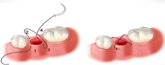 بخیه در دندانپزشکی