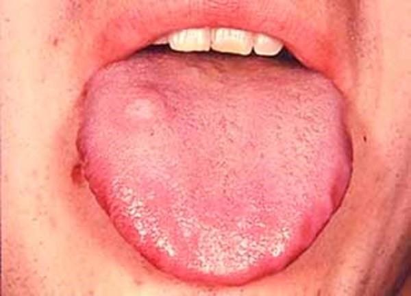 آناتومی و بیماری های زبان