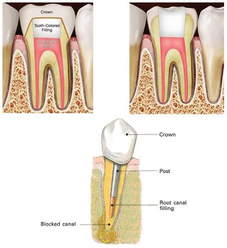 قیمت عصب کشی دندان