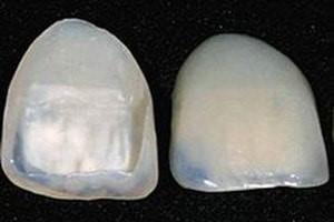 انواع ونیر دندان
