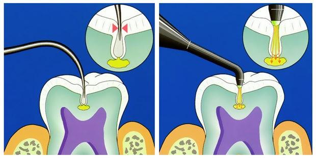 لیزر دندانپزشکی چیست؟
