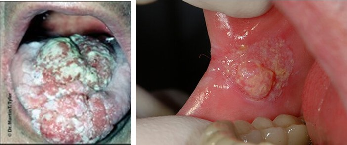 دخانیات و سلامت دهان و دندان