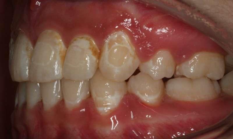 مشکلات و عوارض ارتودنسی دندان