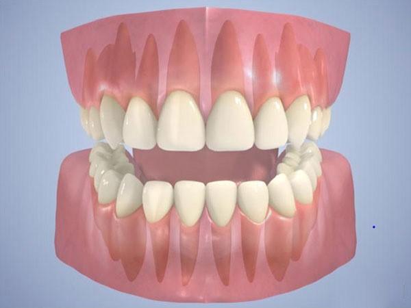شکل صحیح قرار گرفتن دندانها