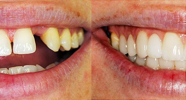 ارتودنسی فوری با ونیر دندانی