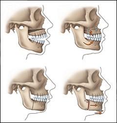 جراحی فک یا ارتوگناتیک در ارتودنسی