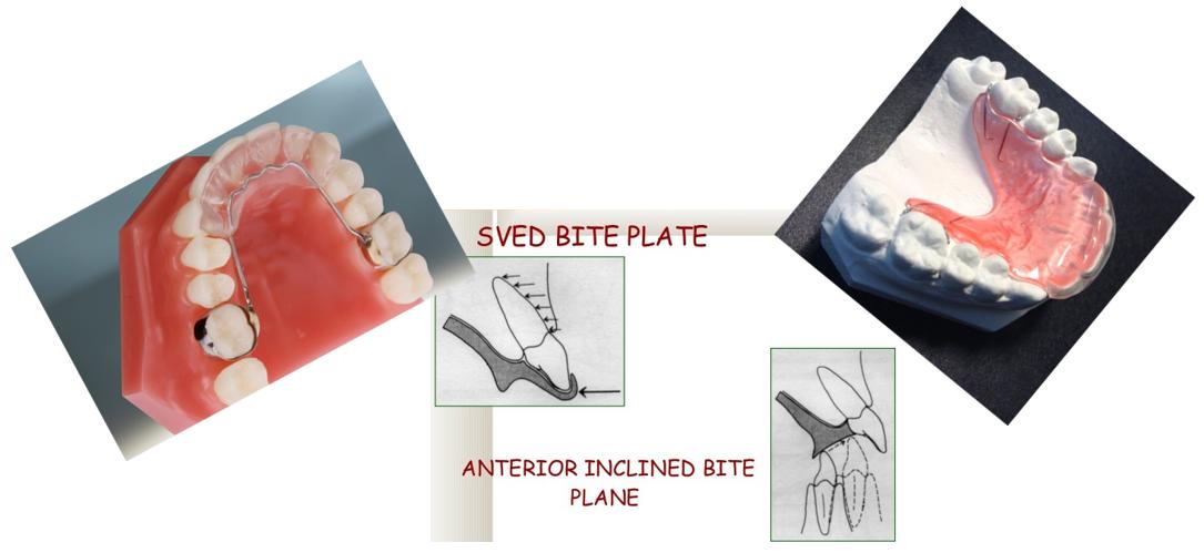 دیپ بایت و درمان آن با کمک ارتودنسی