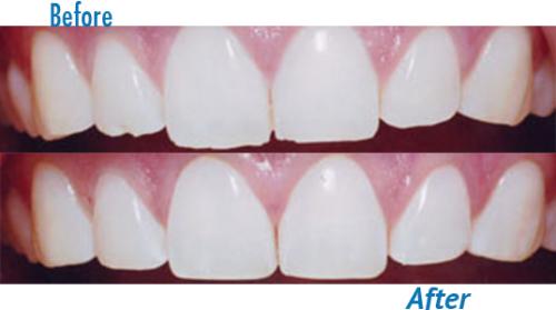 کانتور یا تغییر شکل مینای دندان ها