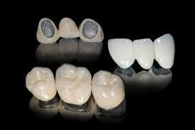 روکش های دندانی؛ کاربرد آنها و مواد آنها