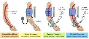 فشار خون و مراقبت دندانپزشکی