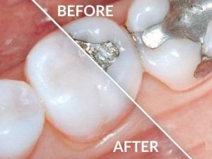 پرکردن دندان پوسیده با آمالگام