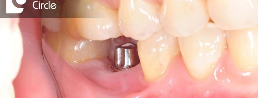بهترین زمان برای کاشت ایمپلنت پس از کشیدن دندان