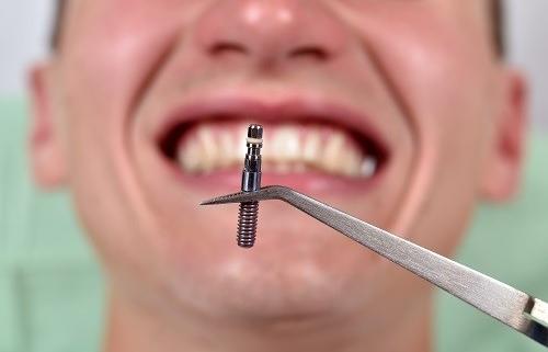 سن کاشت ایمپلنت دندانی